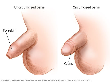 circumcision medical reasons