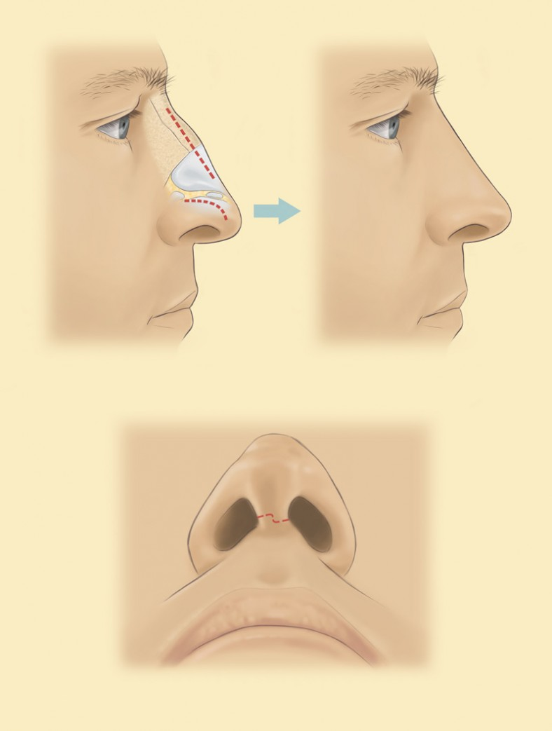 diagramrhinoplasty